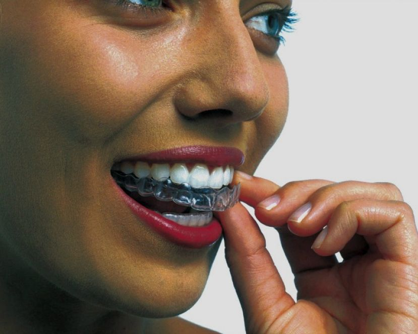 Beautiful woman applying teeth whitening strips